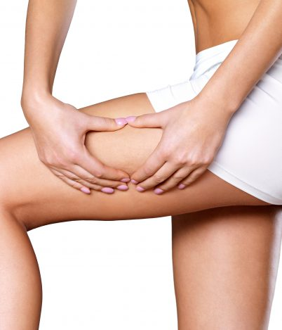 Cellulit acellulitis – czytojest tosamo?
